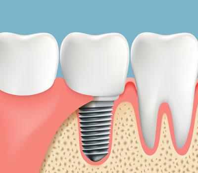 Tooth Implants in Lihue, Kauai